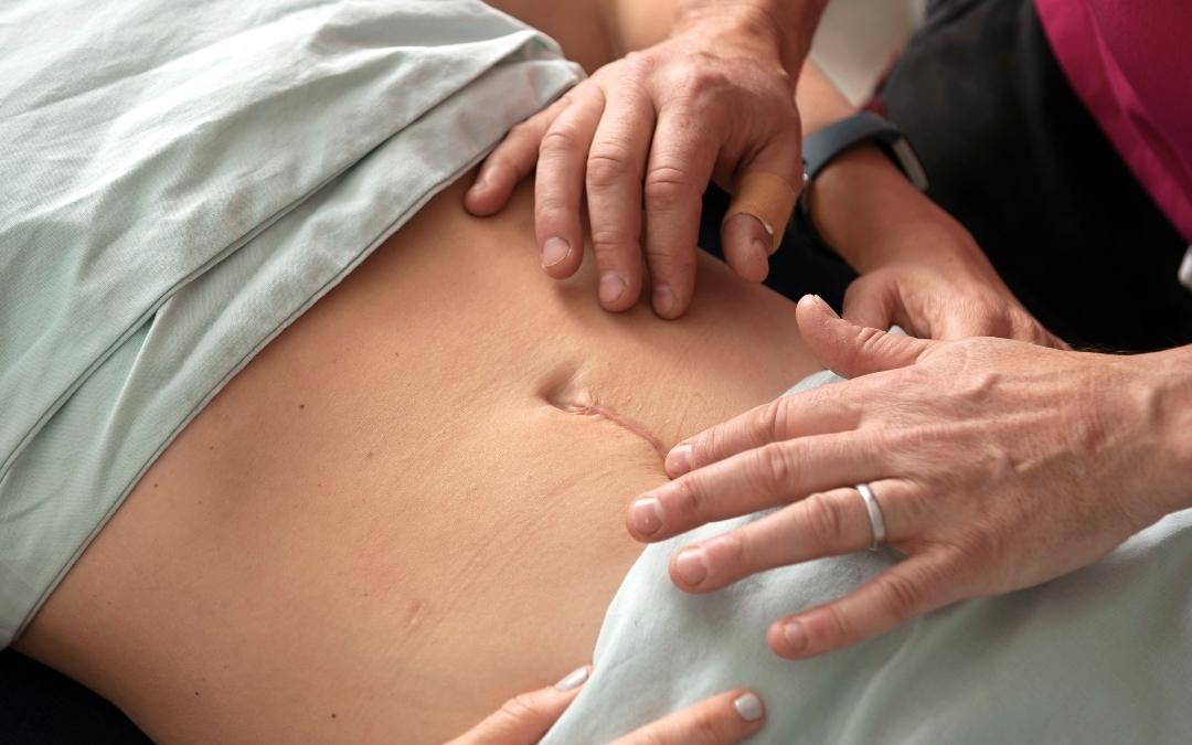 What You Need To Know About Scar Tissue Massage?