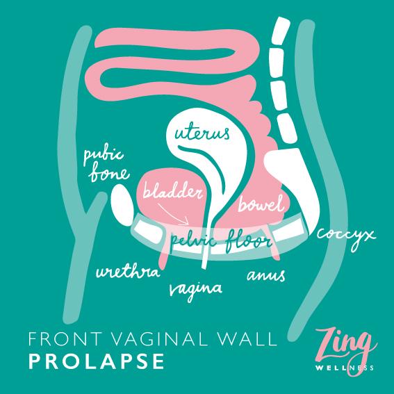 bladder prolapse