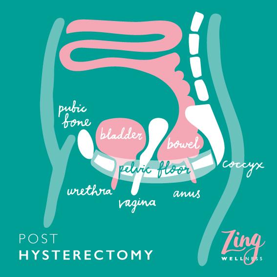 Post hysterectomy